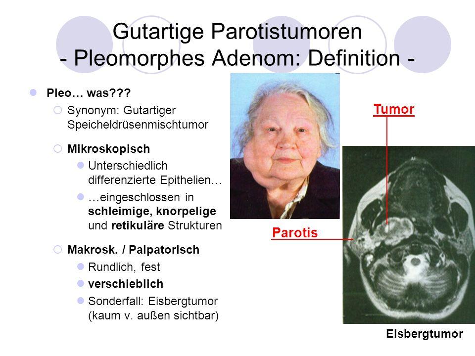Gutartige Parotistumoren - Pleomorphes Adenom: Definition -