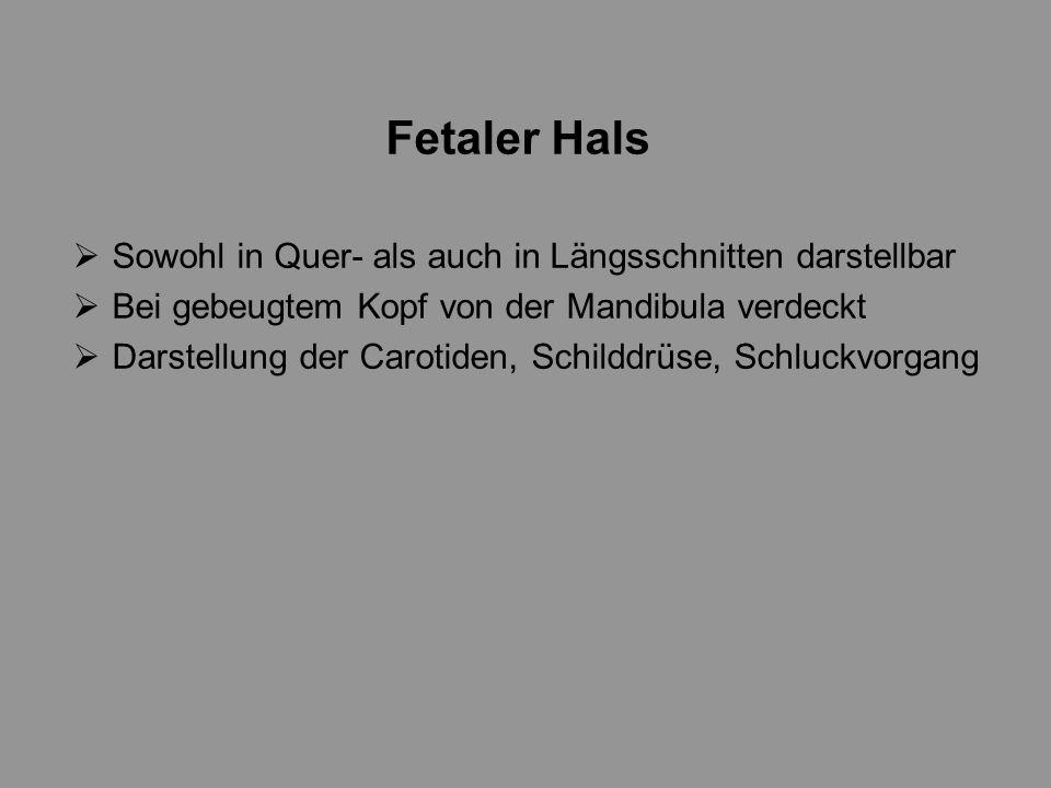 Fetaler Hals Sowohl in Quer- als auch in Längsschnitten darstellbar