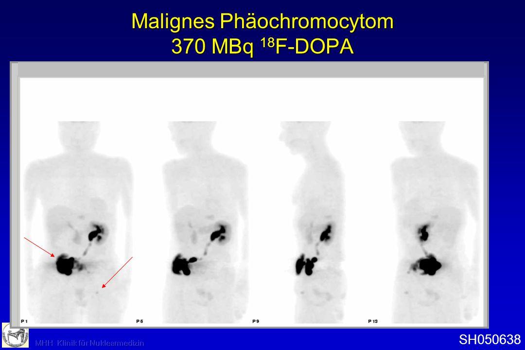 Malignes Phäochromocytom 370 MBq 18F-DOPA
