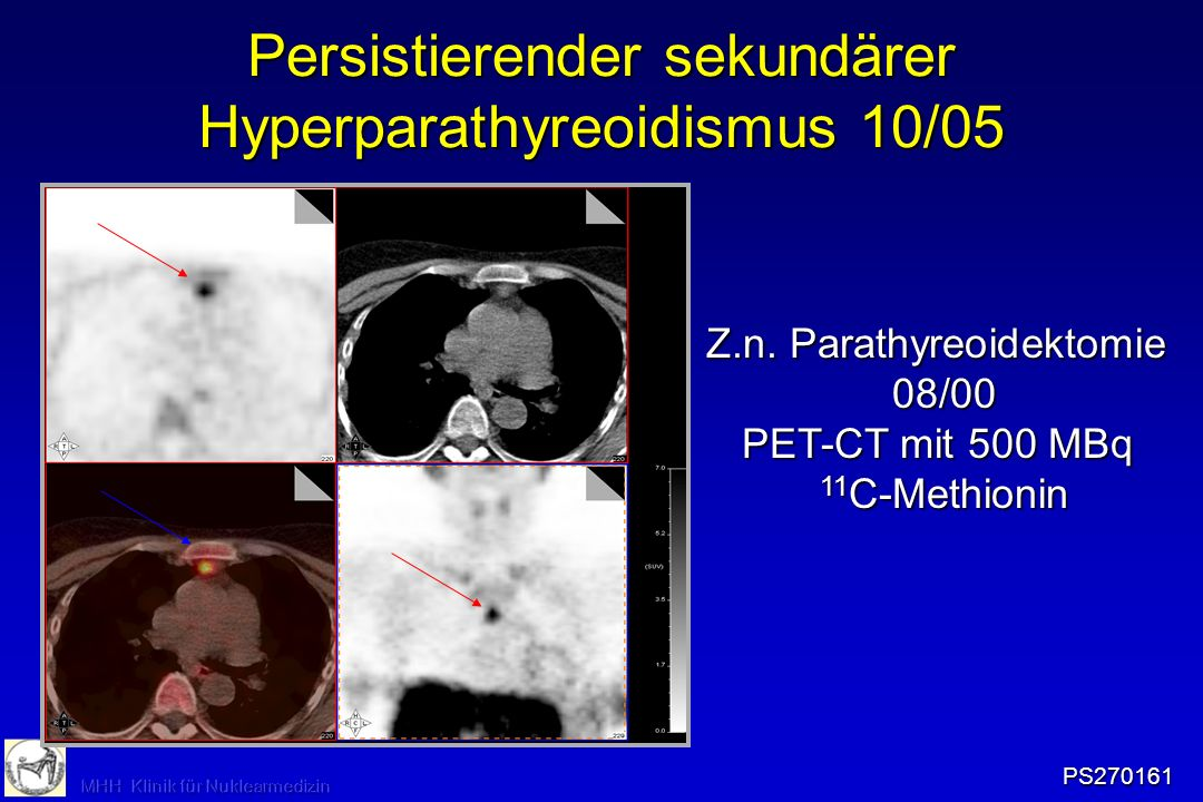 Persistierender sekundärer Hyperparathyreoidismus 10/05