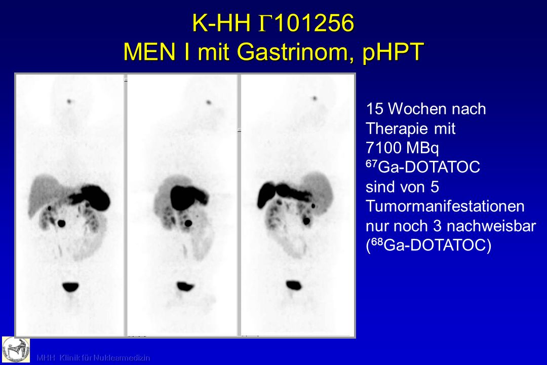 K-HH 101256 MEN I mit Gastrinom, pHPT