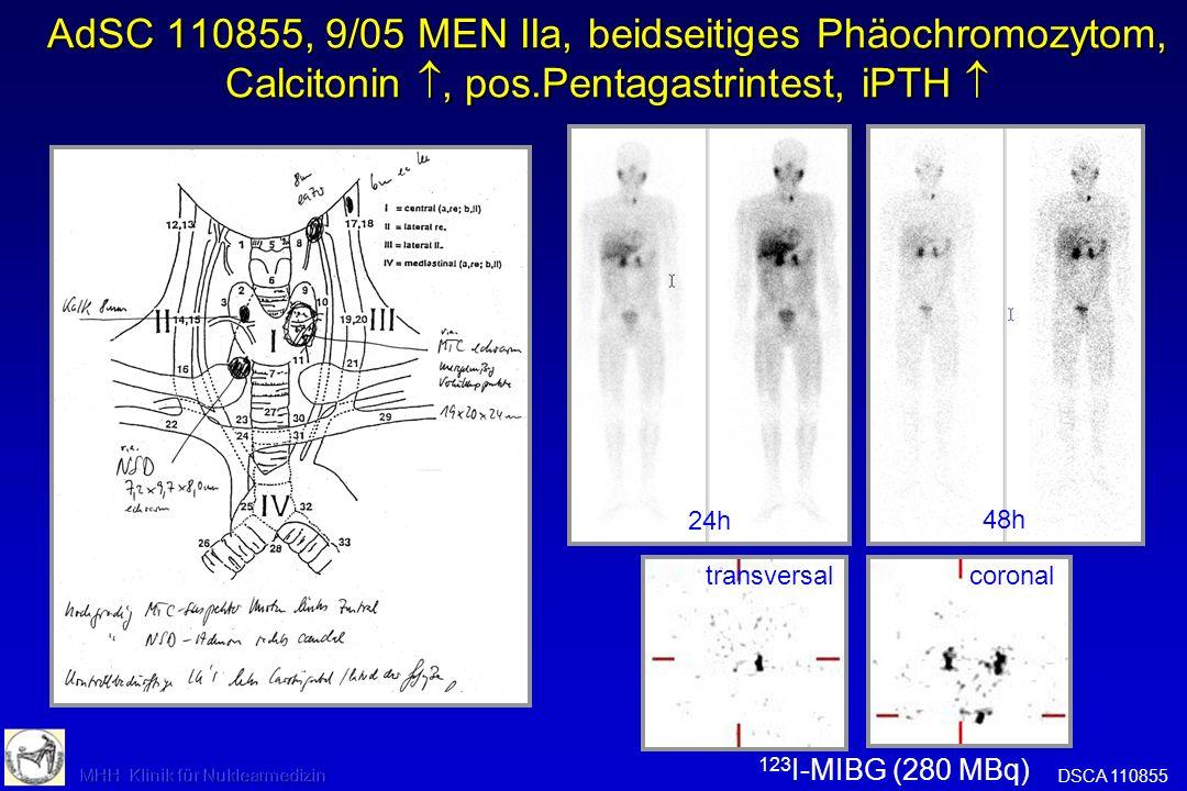 AdSC 110855, 9/05 MEN IIa, beidseitiges Phäochromozytom, Calcitonin , pos.Pentagastrintest, iPTH 