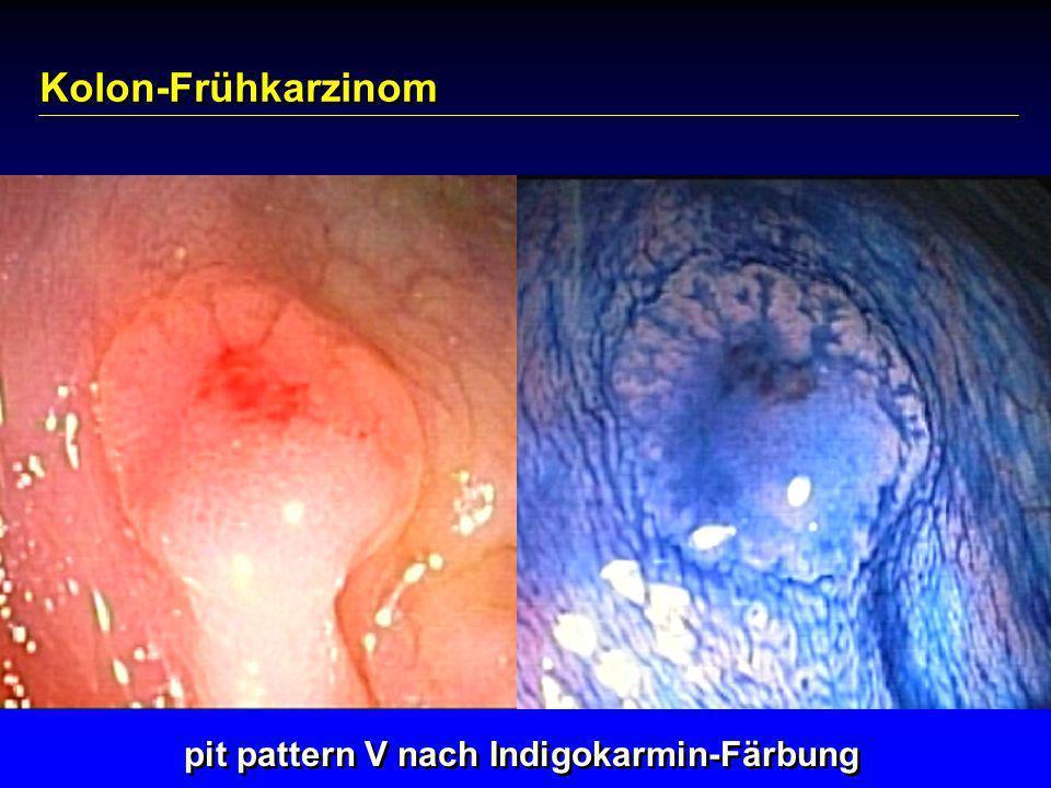 pit pattern V nach Indigokarmin-Färbung