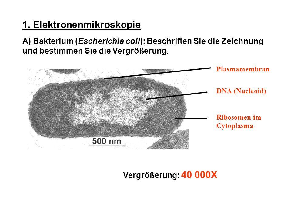 1. Elektronenmikroskopie