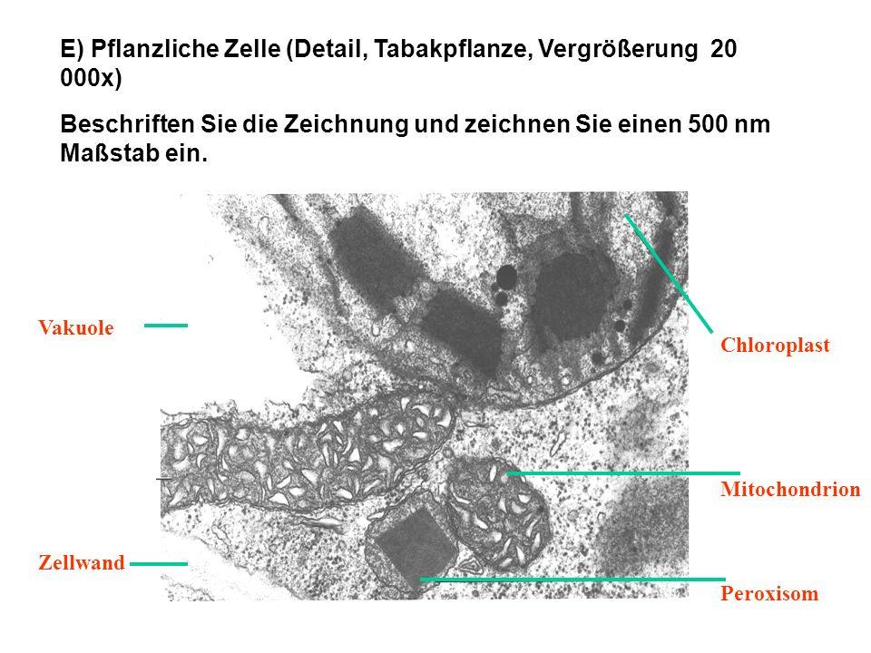 E) Pflanzliche Zelle (Detail, Tabakpflanze, Vergrößerung 20 000x)