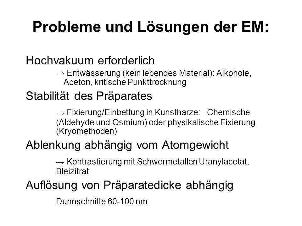 Probleme und Lösungen der EM: