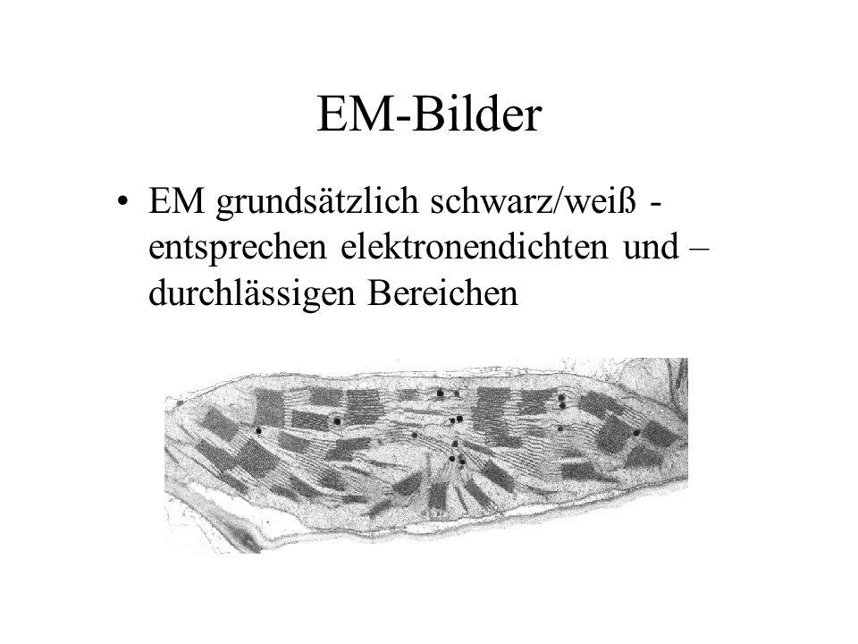 EM-Bilder EM grundsätzlich schwarz/weiß -entsprechen elektronendichten und –durchlässigen Bereichen