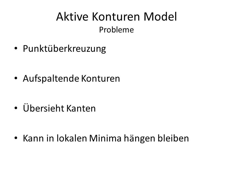 Aktive Konturen Model Probleme
