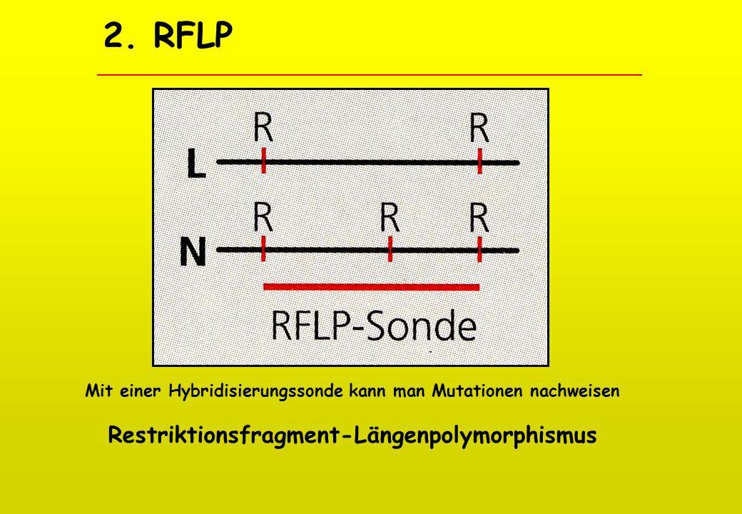 2. RFLP Restriktionsfragment-Längenpolymorphismus