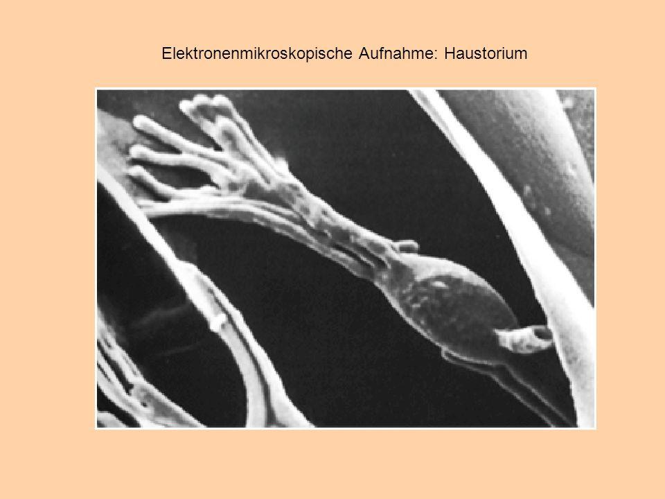 Elektronenmikroskopische Aufnahme: Haustorium