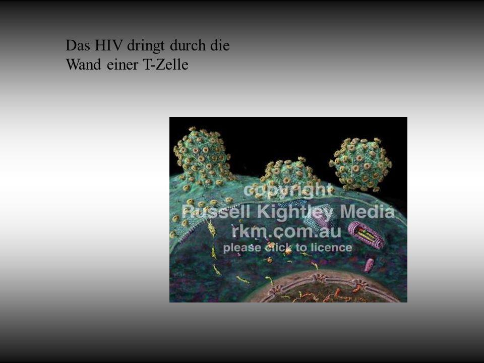 Das HIV dringt durch die Wand einer T-Zelle
