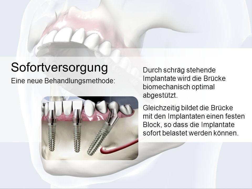 Sofortversorgung Durch schräg stehende Implantate wird die Brücke biomechanisch optimal abgestützt.