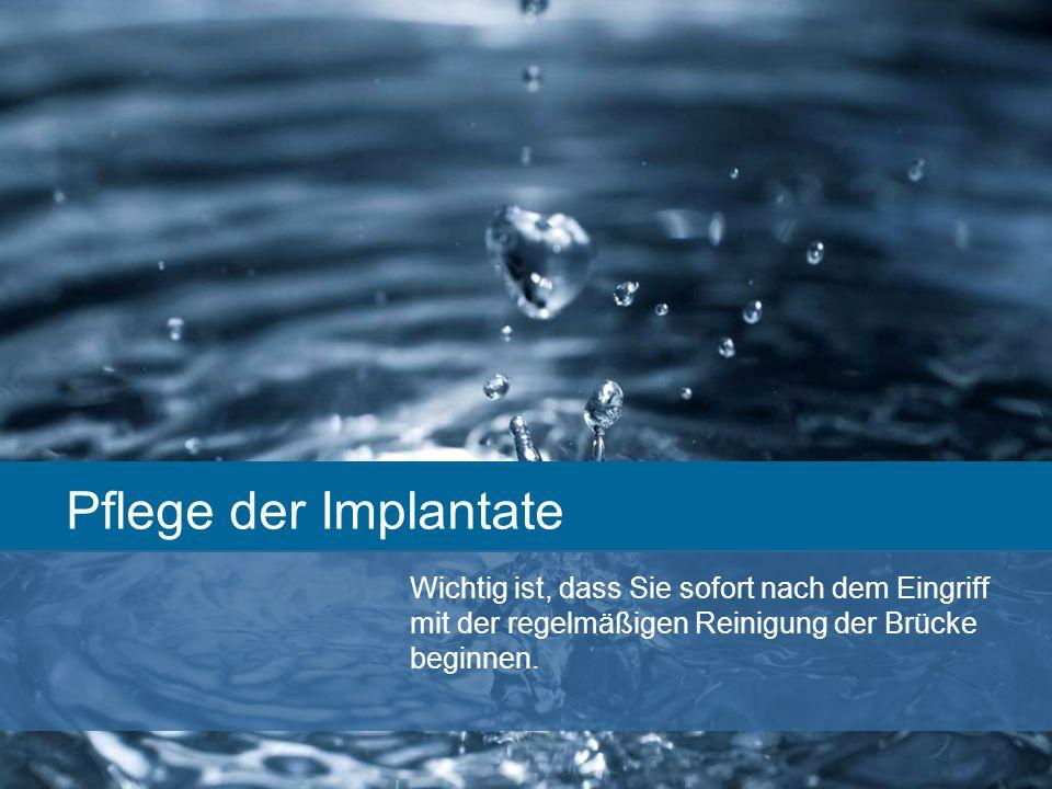 Pflege der Implantate Wichtig ist, dass Sie sofort nach dem Eingriff mit der regelmäßigen Reinigung der Brücke beginnen.