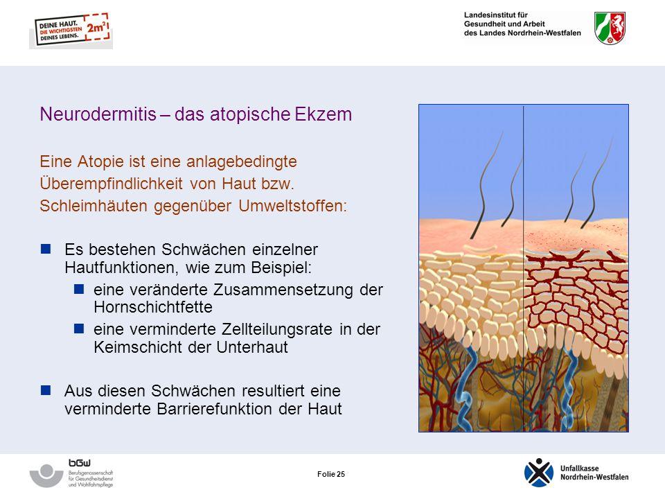 Neurodermitis – das atopische Ekzem