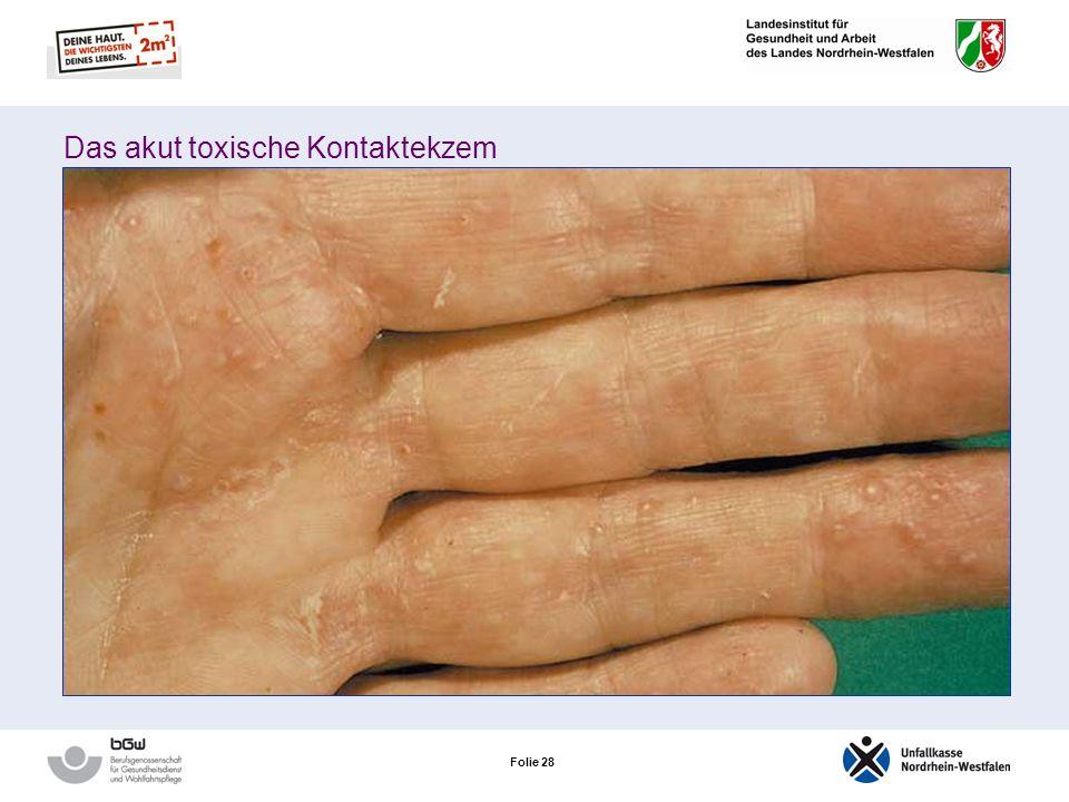 Das akut toxische Kontaktekzem