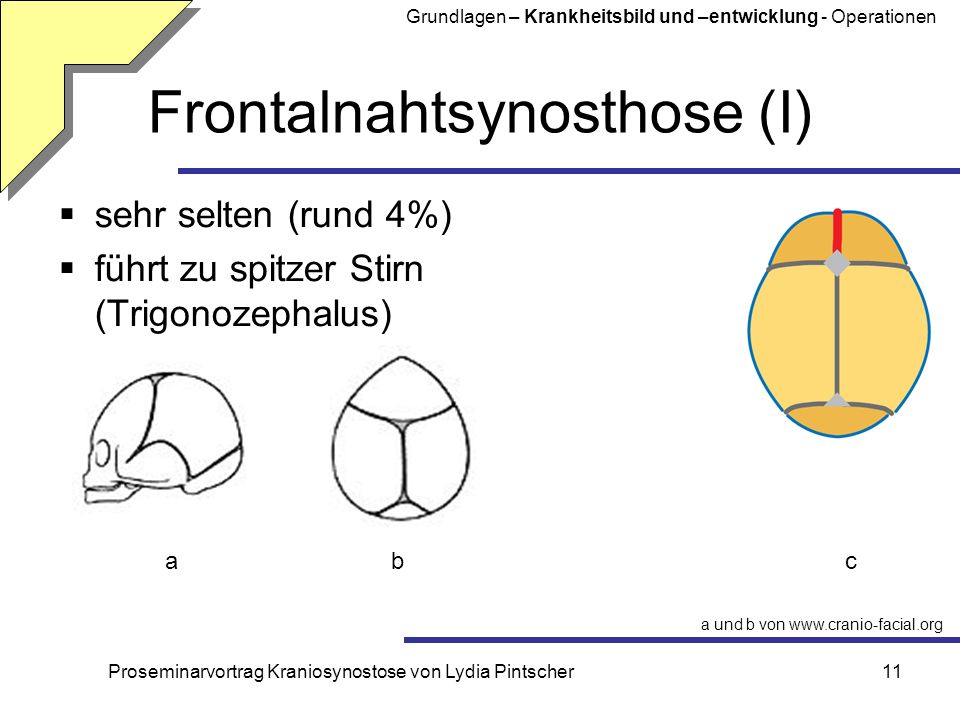 Frontalnahtsynosthose (I)