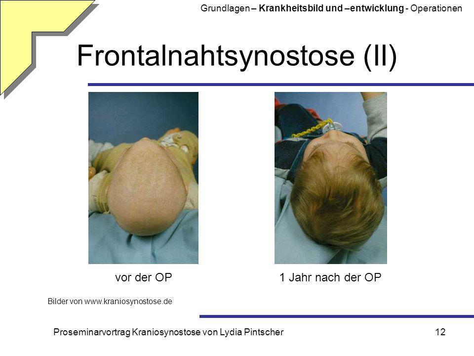 Frontalnahtsynostose (II)