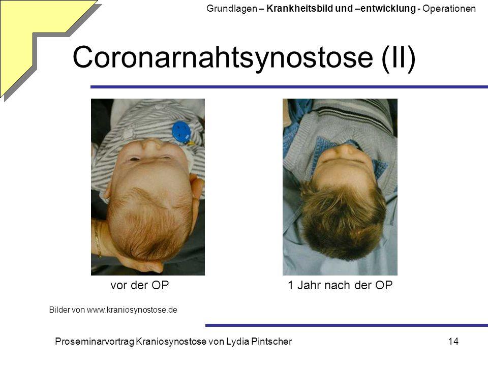 Coronarnahtsynostose (II)