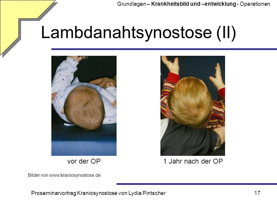 Lambdanahtsynostose (II)