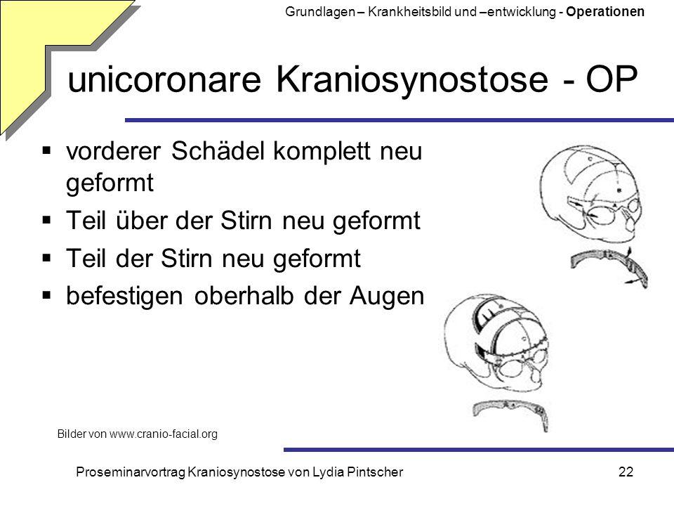 unicoronare Kraniosynostose - OP