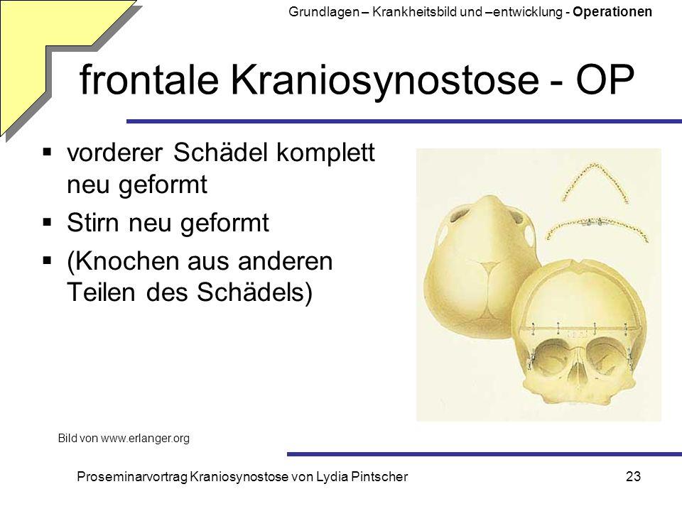 frontale Kraniosynostose - OP