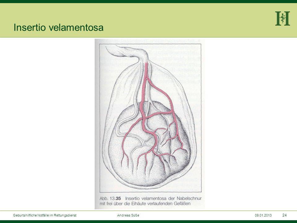 Insertio velamentosa Geburtshilfliche Notfälle im Rettungsdienst Andreas Süße.