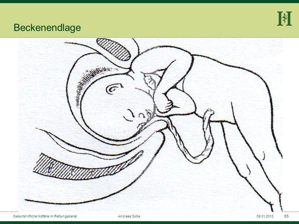 Beckenendlage Geburtshilfliche Notfälle im Rettungsdienst Andreas Süße