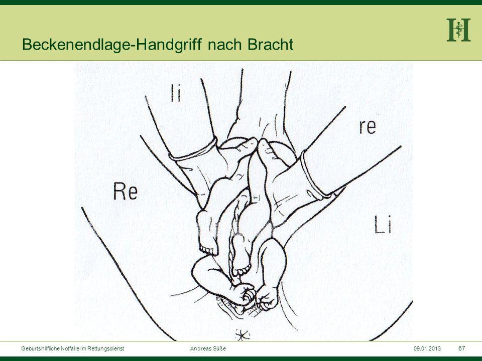 Beckenendlage-Handgriff nach Bracht
