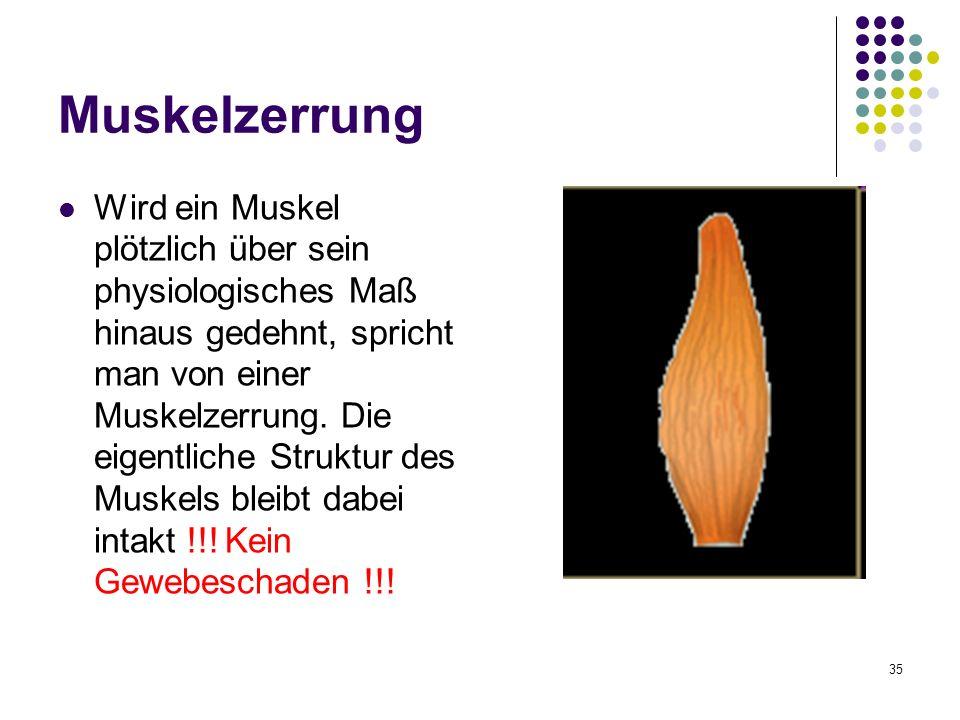 Nett Muskelzerrung Hinter Knie Ideen - Anatomie Ideen - finotti.info