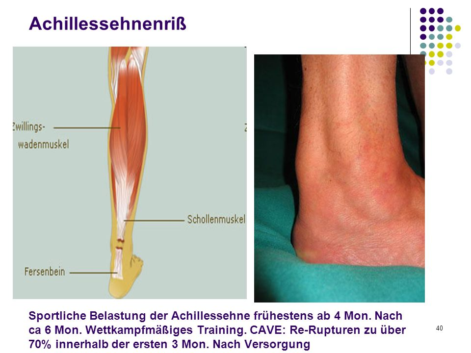 Sportliche Belastung der Achillessehne frühestens ab 4 Mon