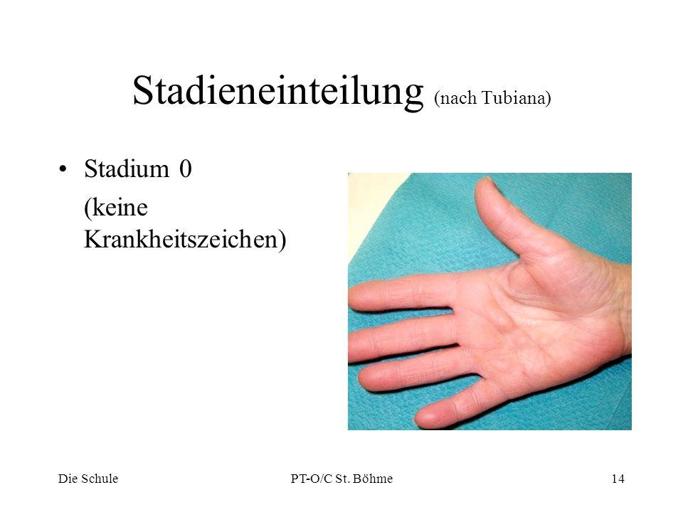 Stadieneinteilung (nach Tubiana)
