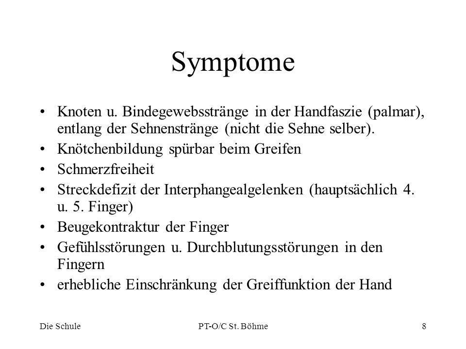 Symptome Knoten u. Bindegewebsstränge in der Handfaszie (palmar), entlang der Sehnenstränge (nicht die Sehne selber).