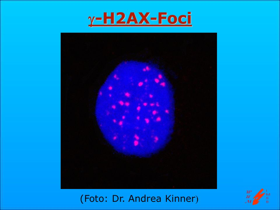 -H2AX-Foci (Foto: Dr. Andrea Kinner)