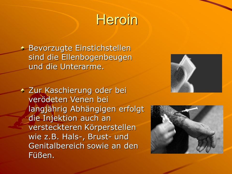 Heroin Bevorzugte Einstichstellen sind die Ellenbogenbeugen und die Unterarme.