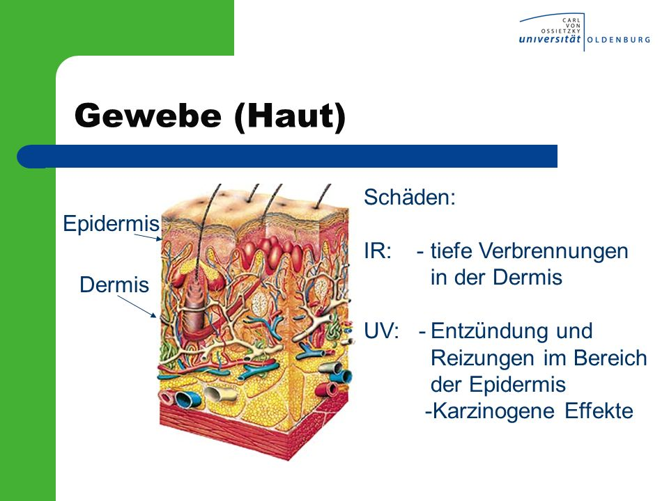 Gewebe (Haut) Schäden: Epidermis