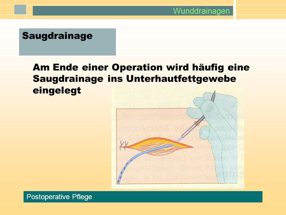 SaugdrainageAm Ende einer Operation wird häufig eine Saugdrainage ins Unterhautfettgewebe eingelegt.