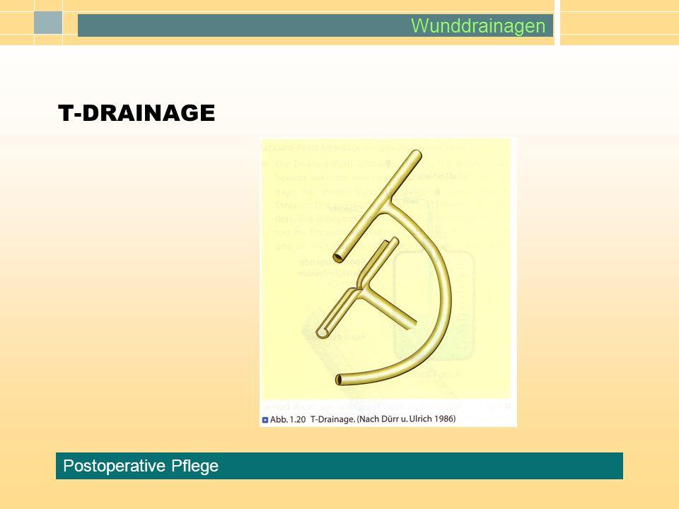 T-DRAINAGE