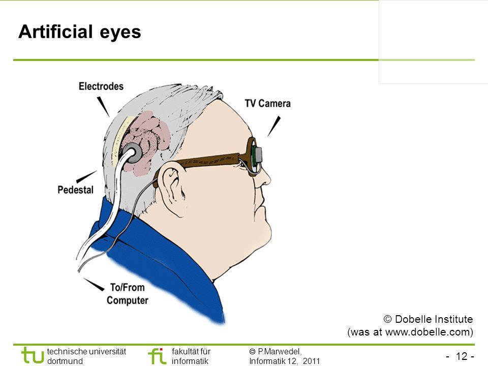 Artificial eyes © Dobelle Institute (was at www.dobelle.com)
