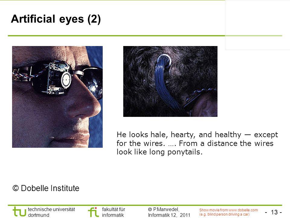 Artificial eyes (2) © Dobelle Institute