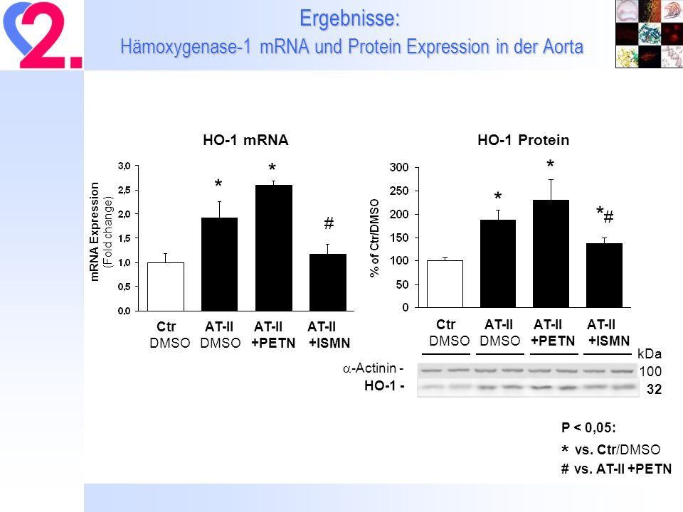 Ergebnisse: Hämoxygenase-1 mRNA und Protein Expression in der Aorta