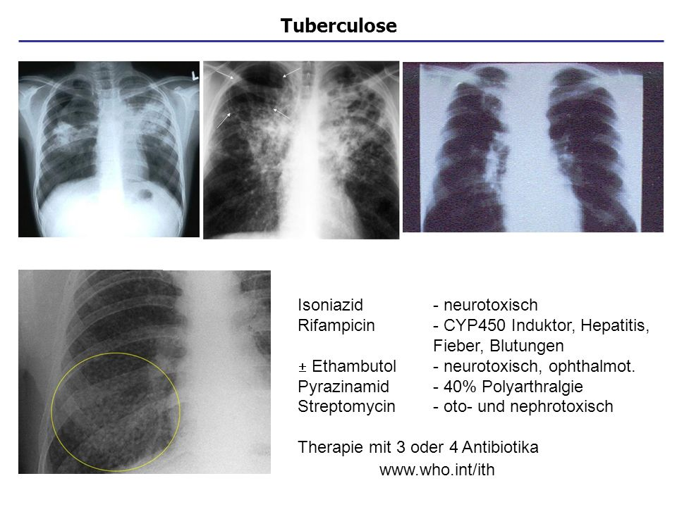 Tuberculose Isoniazid - neurotoxisch
