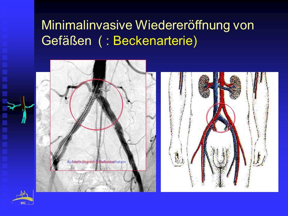 Minimalinvasive Wiedereröffnung von Gefäßen ( : Beckenarterie)