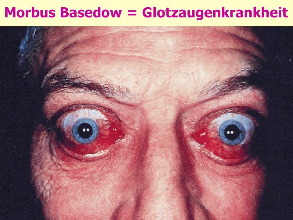 Morbus Basedow = Glotzaugenkrankheit