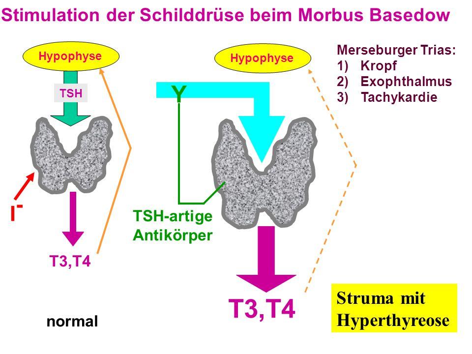 T3,T4 Y I- Stimulation der Schilddrüse beim Morbus Basedow Struma mit