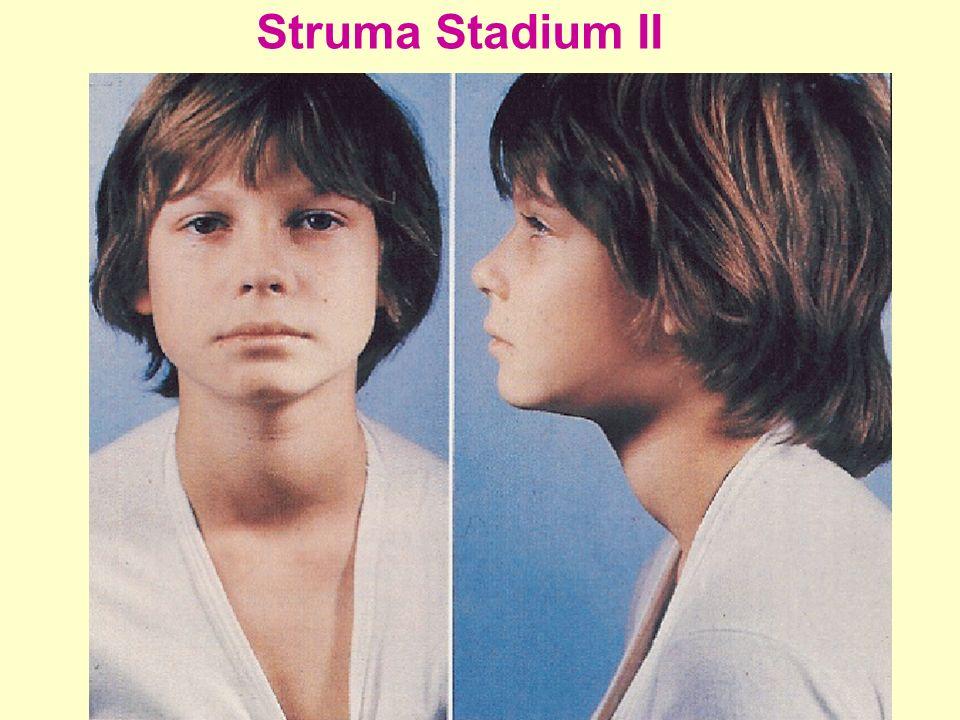 Struma Stadium II