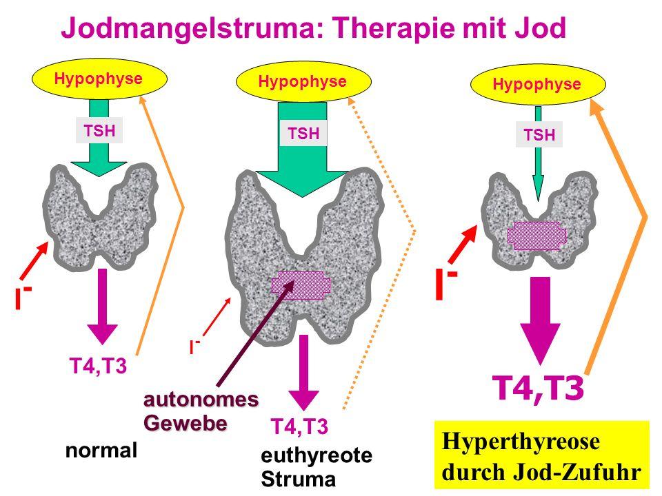 I- T4,T3 Jodmangelstruma: Therapie mit Jod I- Hyperthyreose