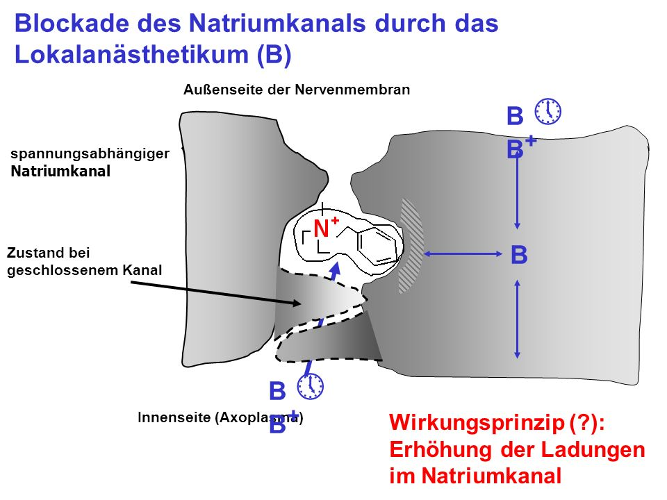 Blockade des Natriumkanals durch das Lokalanästhetikum (B)