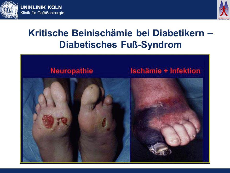 Kritische Beinischämie bei Diabetikern – Diabetisches Fuß-Syndrom