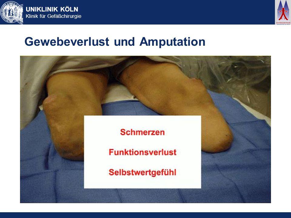 Gewebeverlust und Amputation