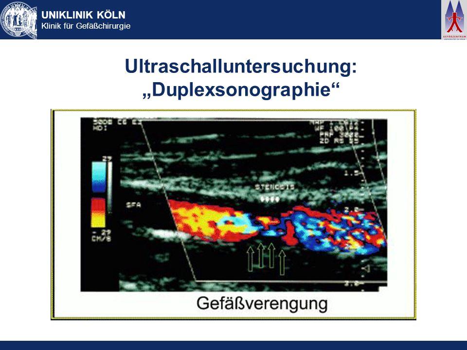 """Ultraschalluntersuchung: """"Duplexsonographie"""